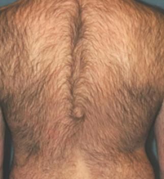 3 Months Post 4 Treatments